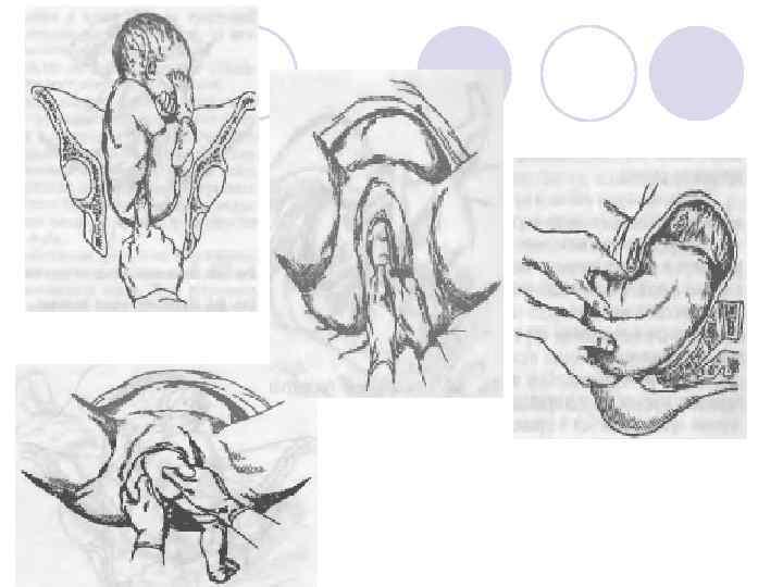 Расхождение костей таза при беременности: что делать, когда и как начинают, симфиз лобковой кости, симптомы и ощущения   ревматолог