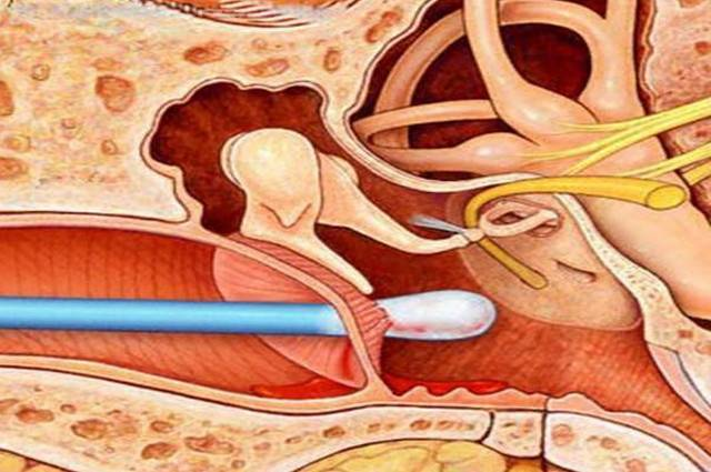 Серная пробка в ухе: как удалить в домашних условиях самостоятельно, симптомы, как вытащить, капли, лекарство от ушных пробок