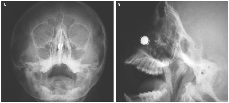 Ребенок засунул аскорбинку в нос. инородное тело в носу у ребенка