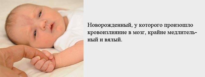 Причины и последствия кровоизлияния в желудочки мозга у новорожденного