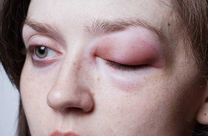Аллергический отек глаз у детей и взрослых: почему появляется, как проявляется, что делать, фото