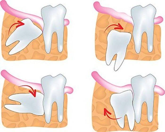 Удаление зуба – осложнения и последствия | wmj.ru