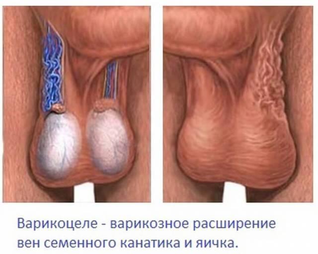 Гипоплазия яичек у взрослых: диагностика, симптомы, лечение