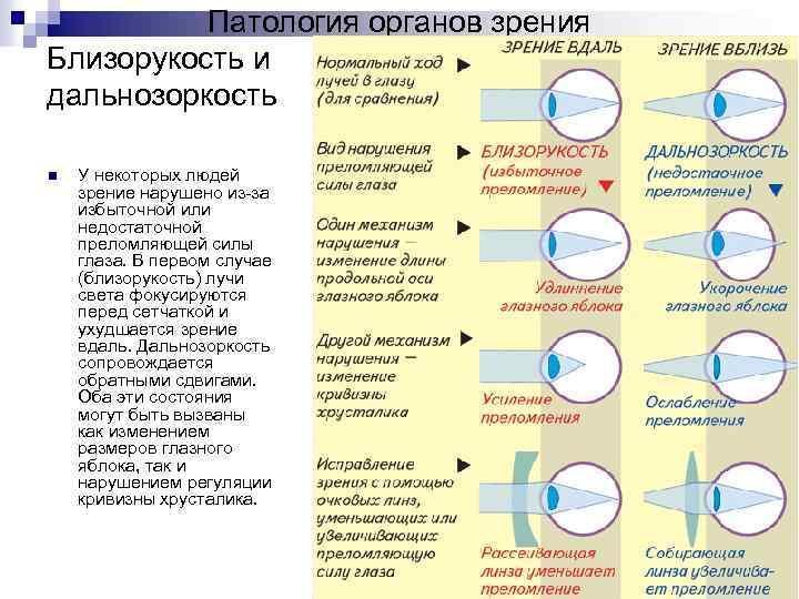 Близорукость (миопия) у детей — причины и симптомы, диагностика и лечение в клинике сфера