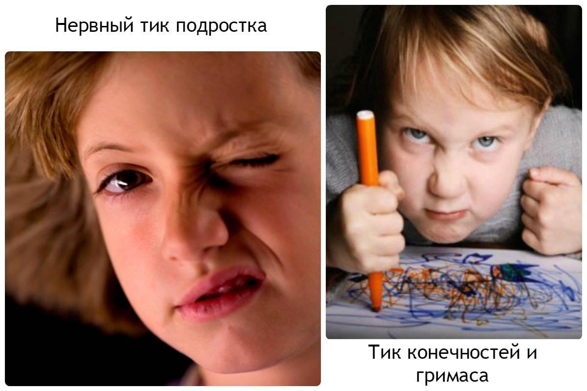 Нервный тик у ребенка: симптомы и лечение тиков глаза, лица (Комаровский)