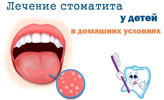 Способы, как быстро вылечить стоматит во рту