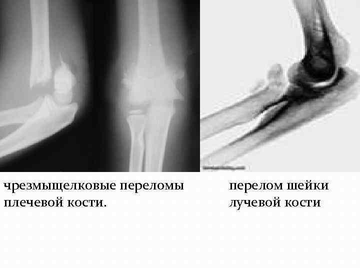 Открытые и закрытые, переломы плечевой кости у детей: чрезмыщелковые и межмыщелковые, со смещением и без - все о суставах