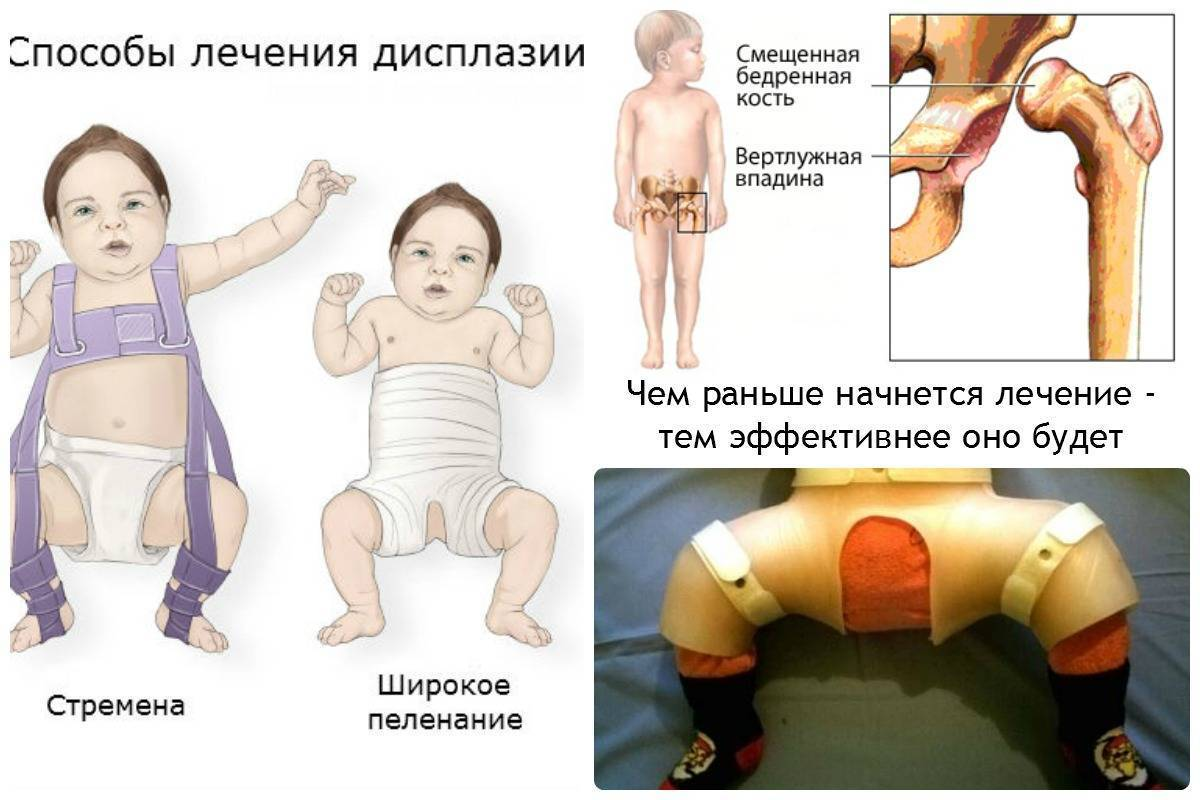 Дисплазия тазобедренных суставов у новорожденных и грудничков: причины, лечение