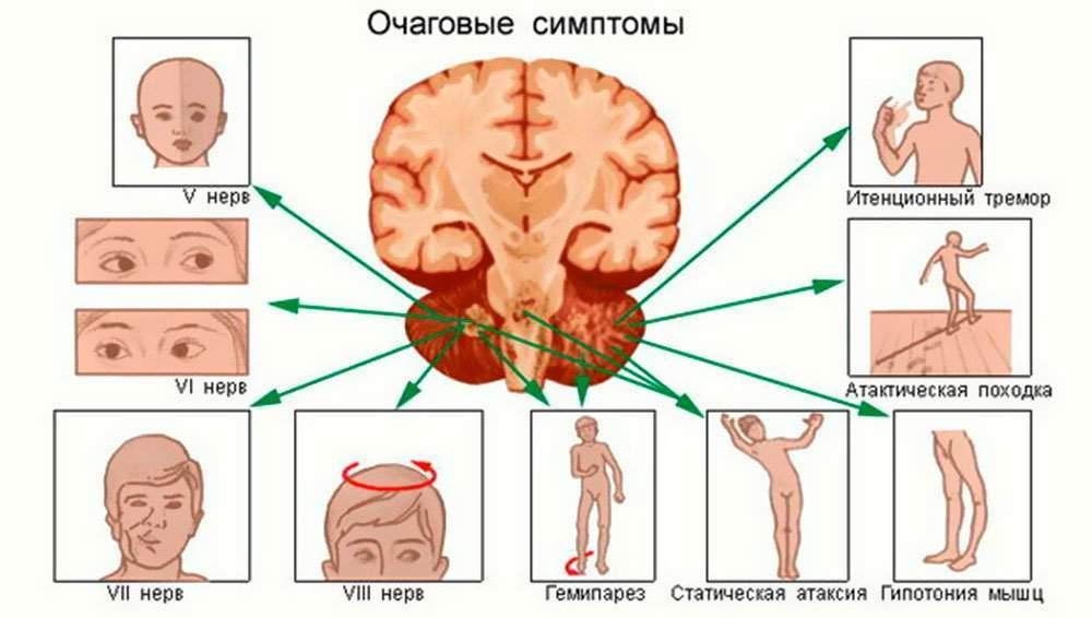 Синдром доброкачественной внутричерепной гипертензии у детей