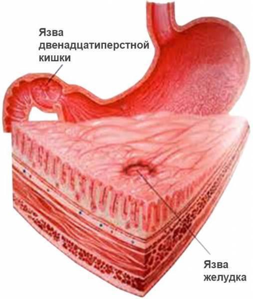 Лечение язвы желудка и двенадцатиперстной кишки у детей
