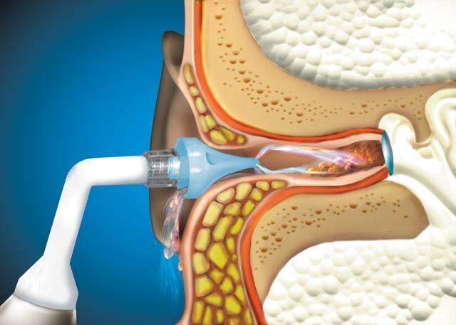 Почему в ухе нет серы - лечение и причины отсутствия