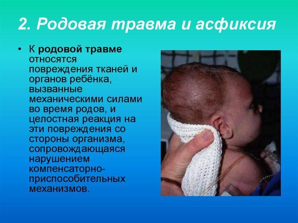 Асфиксия новорожденных: последствия для ребенка, реабилитация и профилактика | заболевания | vpolozhenii.com