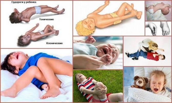 Судороги у детей: фебрильные и не фибрильные - что это такое, причины, виды и первая помощь