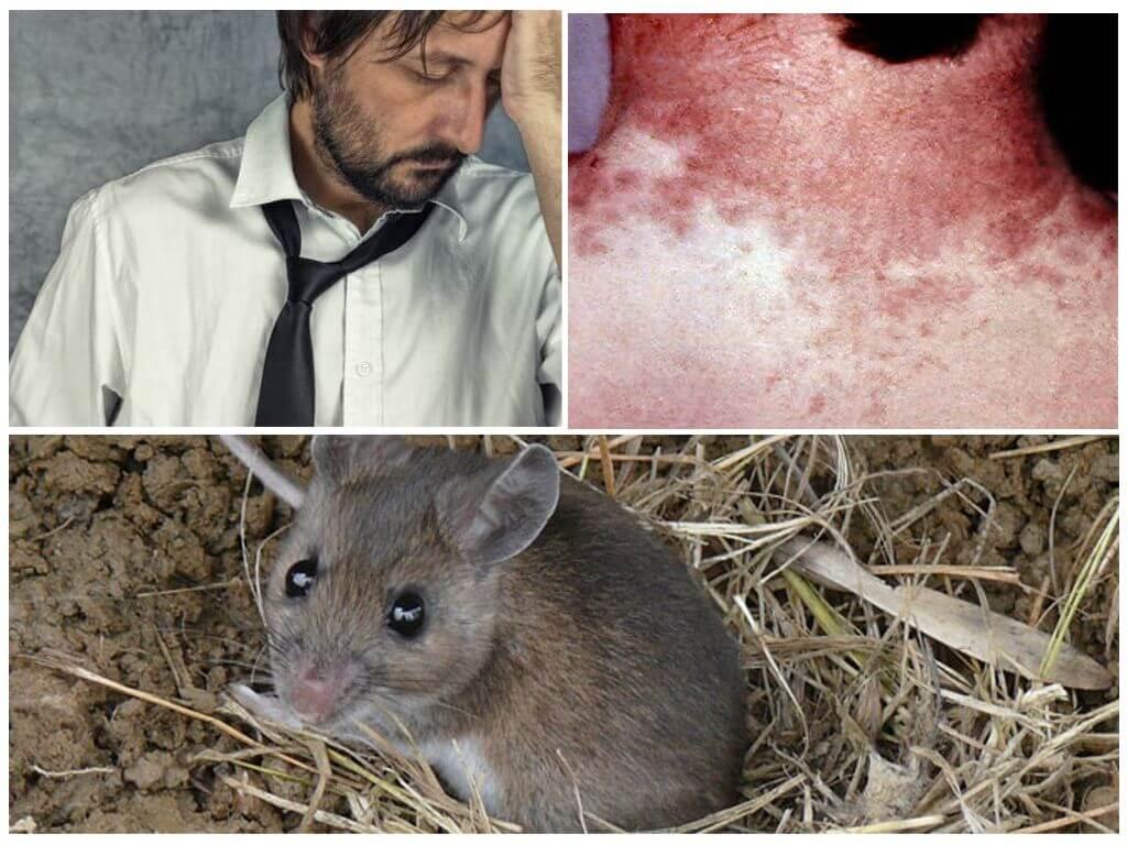Мышиная лихорадка симптомы у детей