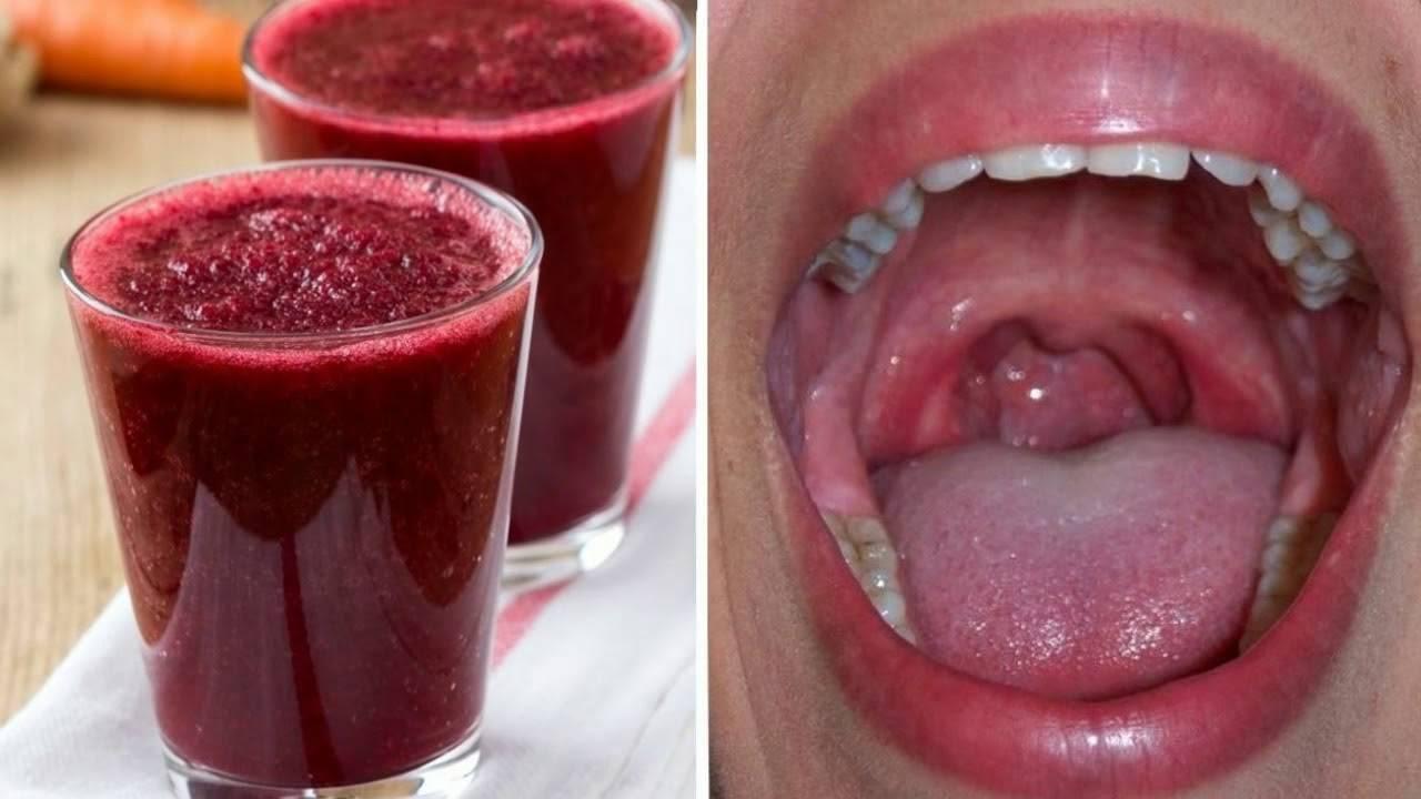 Воспаление горла у ребенка и взрослого - симптомы и методы лечения