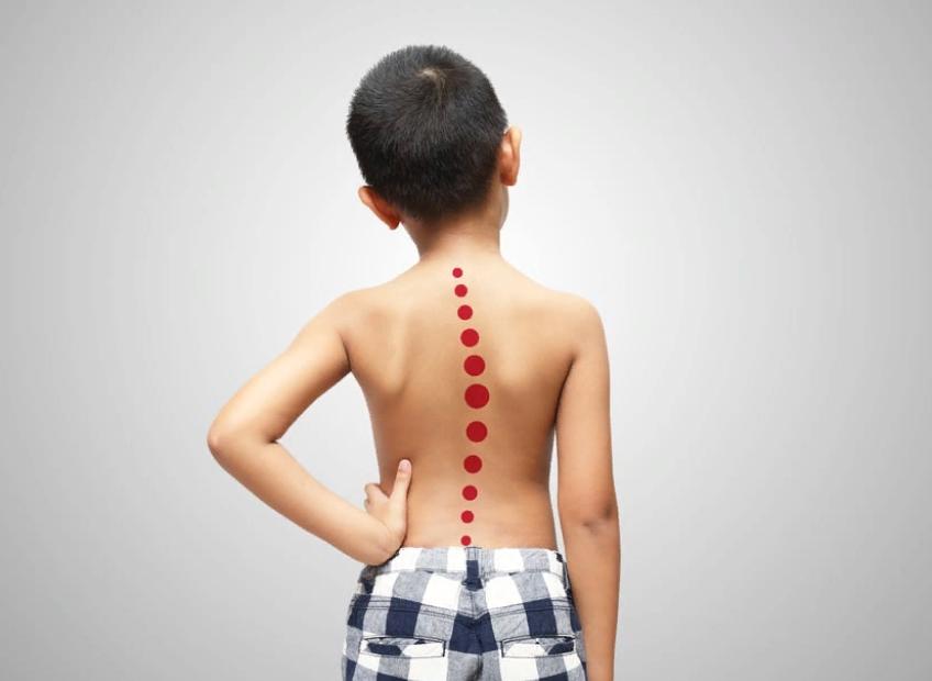 Чем опасен сколиоз грудного отдела позвоночника?