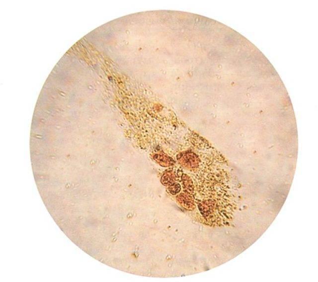 Эпителий плоский в моче при беременности повышен — почки