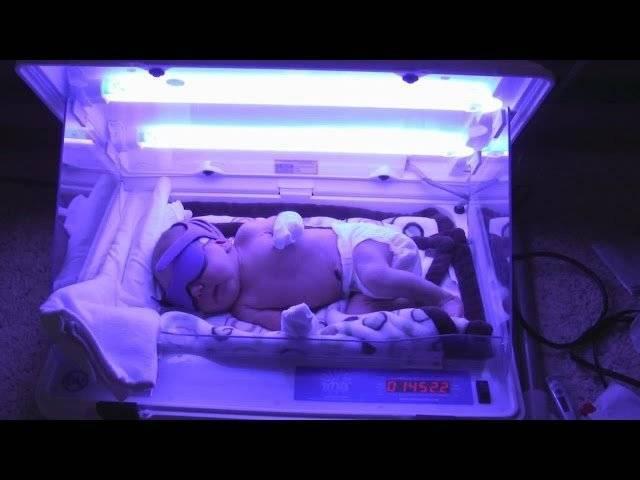 Лампа для лечения желтухи новорожденных: показания, противопоказания и процесс лечения