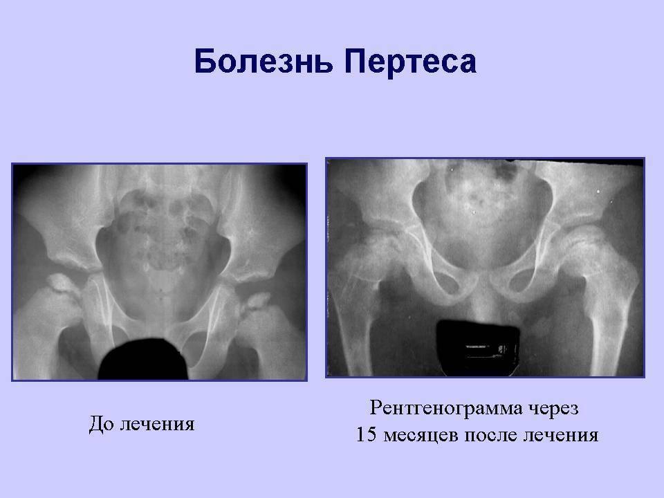 Болезнь пертеса тазобедренного сустава у детей: лечение