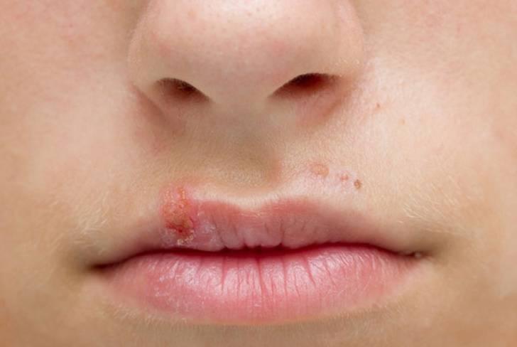 Герпес на губе у ребенка: чем лечить простуду на губах, что делать и заразен ли герпес, как вылечить