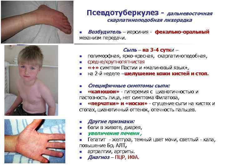 Псевдотуберкулез: симптомы иерсиниоза, диагностика, лечение у детей и взрослых