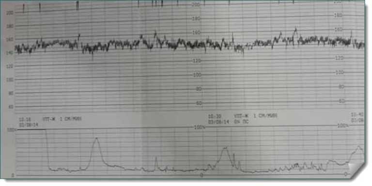 Как выглядят схватки на кгт? 18 фото: как показывает и как определить настоящие схватки – показатели, отображение на рисунке