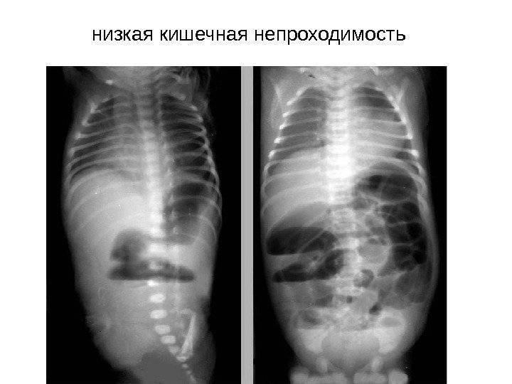 Непроходимость кишечника у детей: опасно ли это?