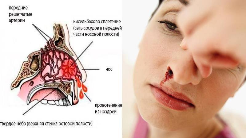 В чем причины носовых кровотечений в детском возрасте?