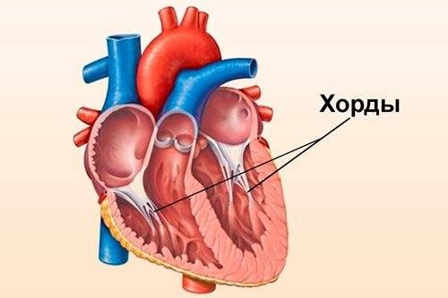 Лишняя хорда в сердце опасно ли это — сердце