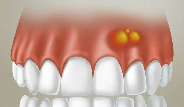 Как лечить гнойник на десне у детей и взрослых: фото нарыва, общие рекомендации стоматологов и профилактика