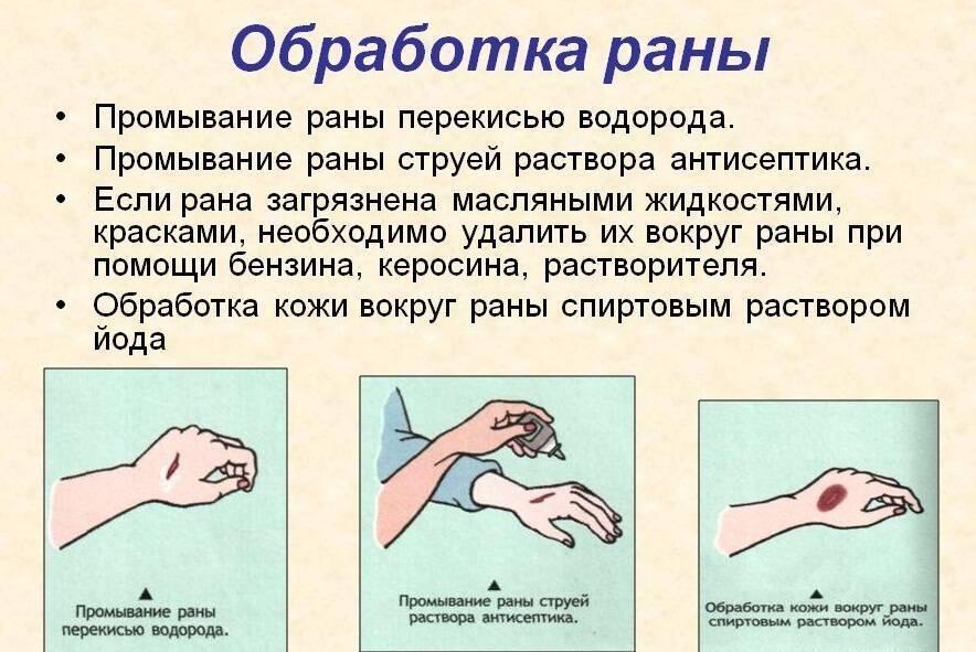 Чем обработать рану у ребенка после падения - как лечить мокнущую ссадину, которая не заживает?