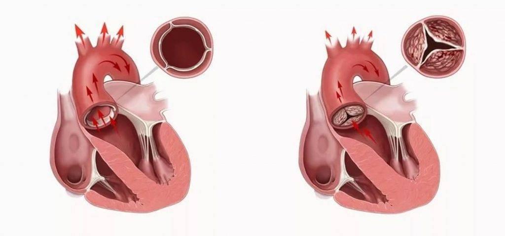 Открытое овальное окно в сердце у ребенка: что это такое, когда оно должно закрыться у грудничка? | заболевания | vpolozhenii.com
