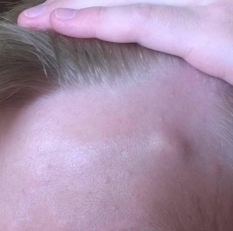 На голове шишка: определение диагноза и причины возникновения