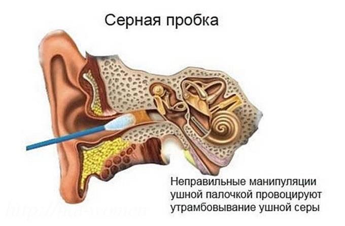 Пробки в ушах у ребенка что делать - педиатор