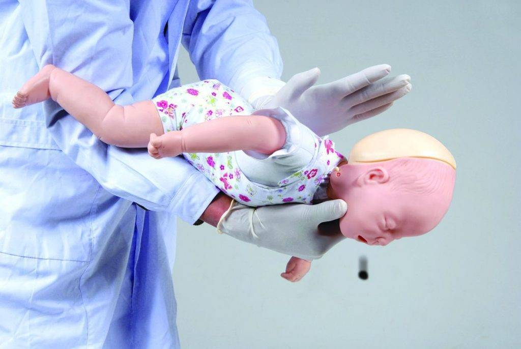 Доктор комаровский - ребенок проглотил пластмассовую деталь, первая помощь если подавился инородным телом