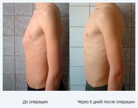 Воронкообразная деформация грудной клетки у детей: 7 причин, 4 симптома, 2 метода лечения
