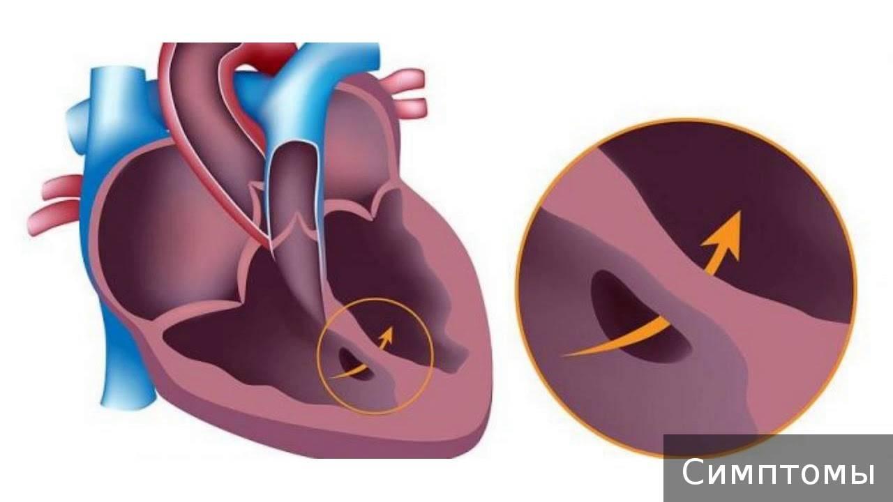 Врожденные пороки сердца у детей — причины, диагностика и лечение
