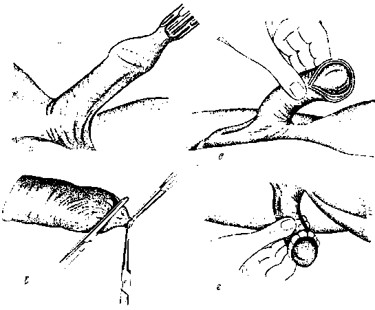 Синехии у мальчиков: фото срастания крайней плоти, лечение в домашних условиях