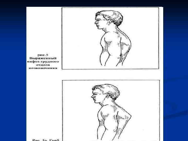 Родовая травма шейного отдела позвоночника у новорожденного симптомы