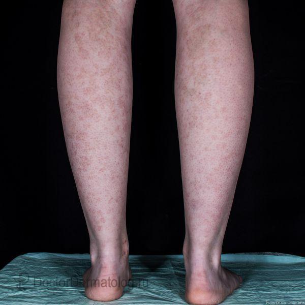 Геморрагический васкулит у детей: причины, симптомы и лечение. геморрагический васкулит: причины и механизмы развития сыпи на теле у ребенка что такое геморрагический васкулит у детей