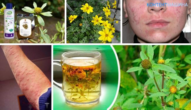 Народные средства от аллергии на цветение • аллергия и аллергические реакции