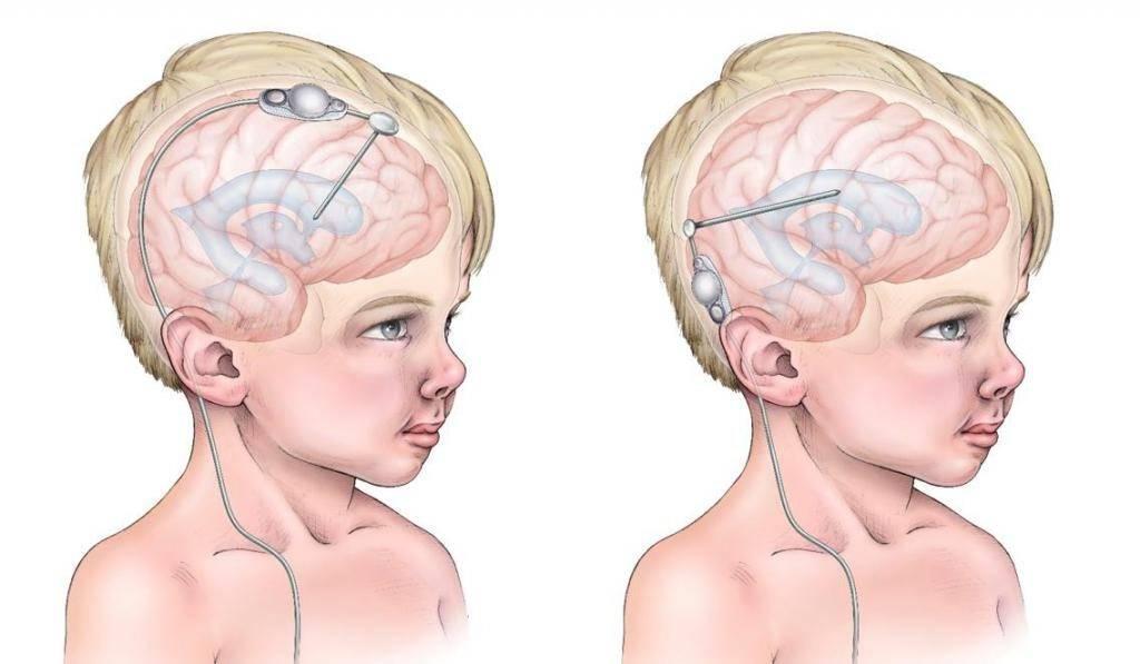 Как быстро уходит отек мозга у младенцев. последствия отека мозга у новорожденных детей