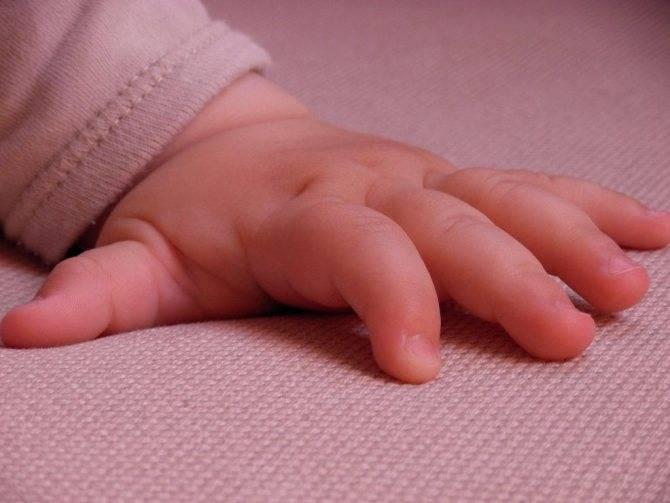 Нарыв на пальце у ребенка лечение - пролечение