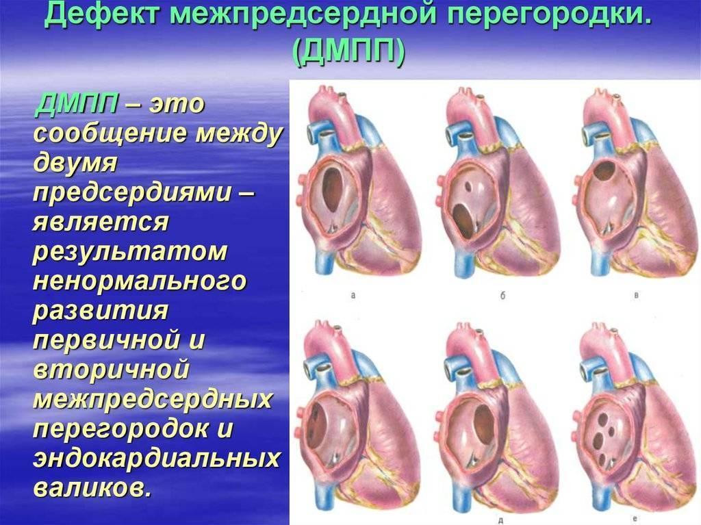 Порок сердца у новорожденных: характеристика, причины появления, симптомы и лечение — заболевания сердца
