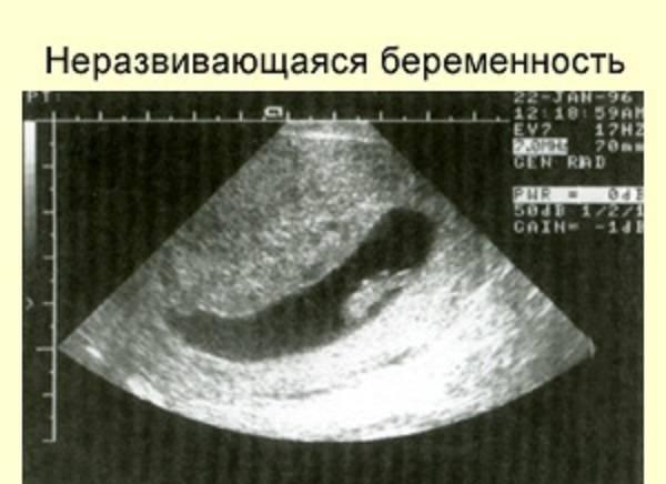 Первые признаки беременности после эко