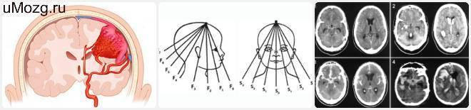 Латеровентрикулоасимметрия головного мозга: что это такое, лечение, последствия