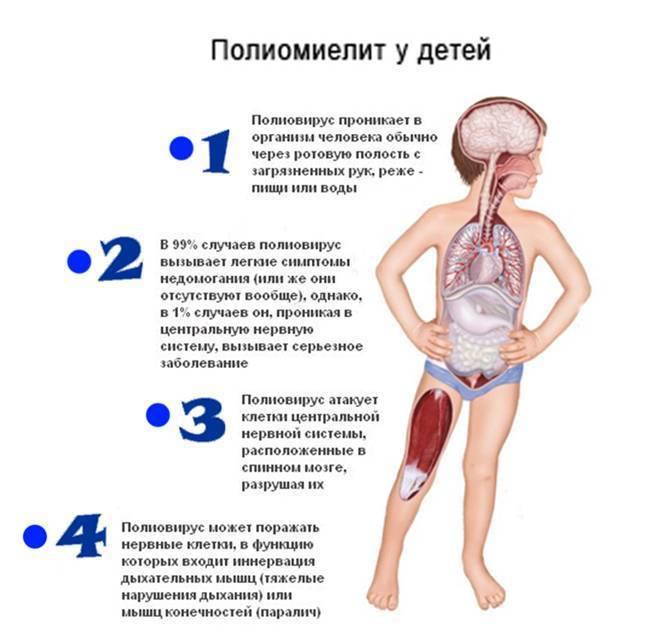 Полиомиелит у детей: фото симптомов, признаки заболевания в разных клинических формах, график прививок