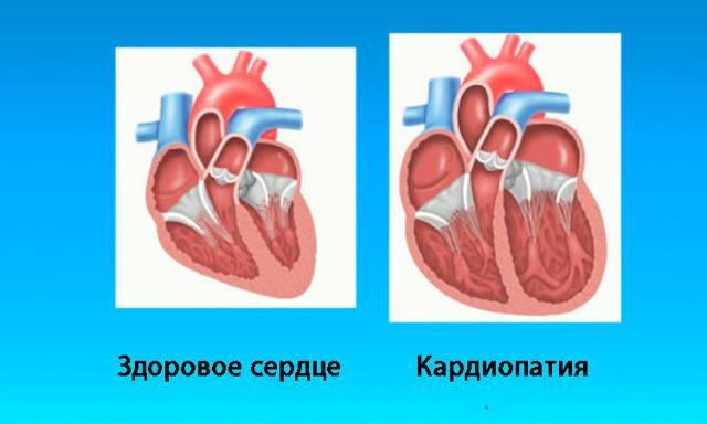 Кардиопатия у детей симптомы и лечение - лечение
