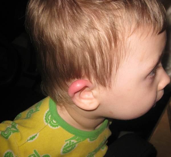 Ухо покраснело и опухло • аллергия и аллергические реакции