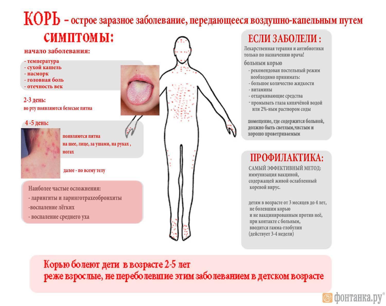 Корь: фото, симптомы и лечение у детей, профилактика - секреты медицины